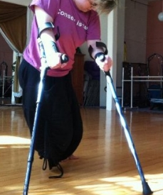 Toby dancing with crutches, with shaggy teal hair, in bright sunlight